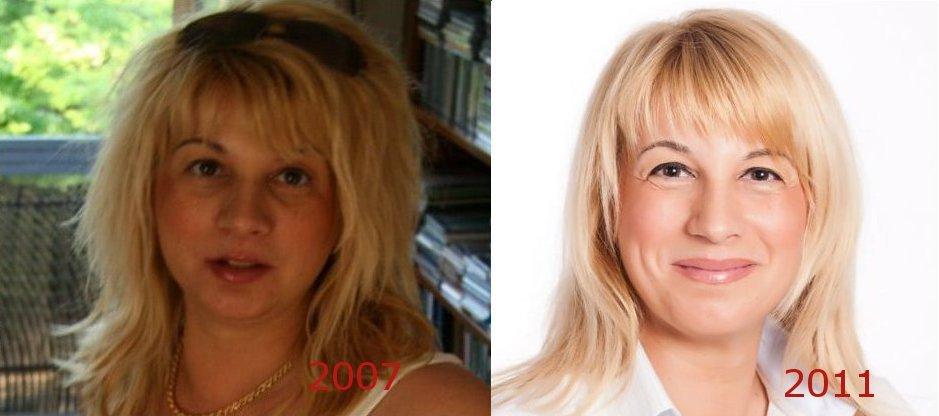 Arcjóga előtt és után