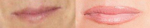 Szélesebb, érzékibb ajkak