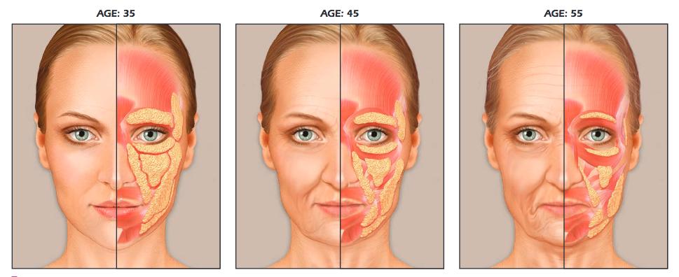 zsírszövet változása az arcon